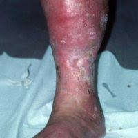 Hypodermitis